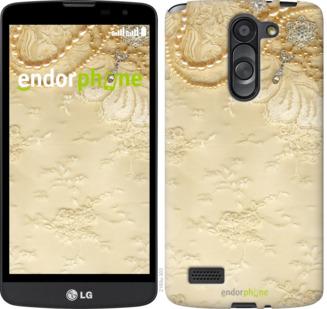 """Силиконовый чехол для LG L Bello D335 """"Кружевной орнамент"""" - интернет-магазин чехлов endorphone.com.ua"""